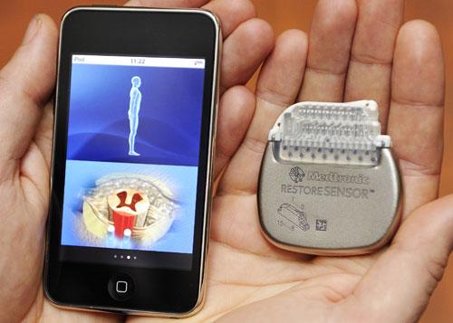 Medtronic Restore sensor Neurostimulator